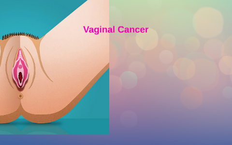 Precancerous vaginal cells