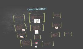 Cesarean section powerpoint templates | Prezi