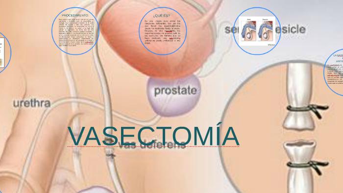 Ha egy embernek van egy prostatitis Otthoni módszer kezelése Prosztatitis