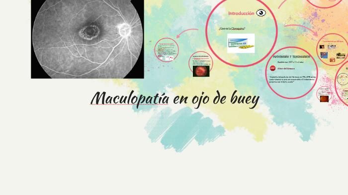maculopatía ojo de buey síntomas de diabetes