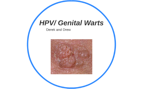 Can human papillomavirus cause genital warts