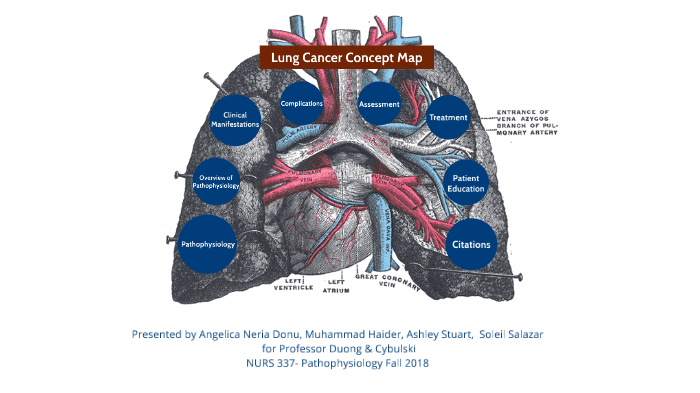 Concept Map Lung Cancer By Muhammad Haider On Prezi Next