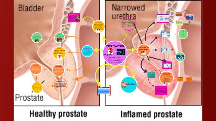 terapia de prostatitis escherichia coli
