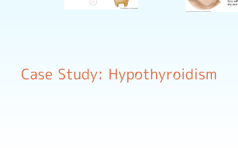 Case Study Hypothyroidism by Lori Ciavaglia on Prezi