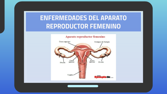 enfermedades causadas por virus en el aparato reproductor femenino