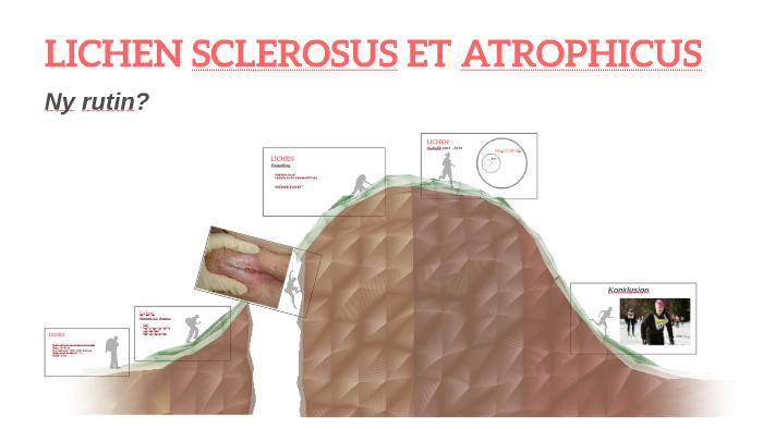 lichen sclerosus et atroficus