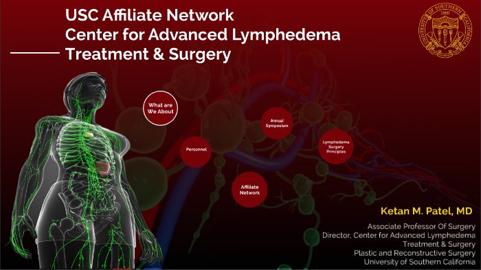 Overview of Lymphedema Surgery by Muneeb Chaudhry on Prezi Next