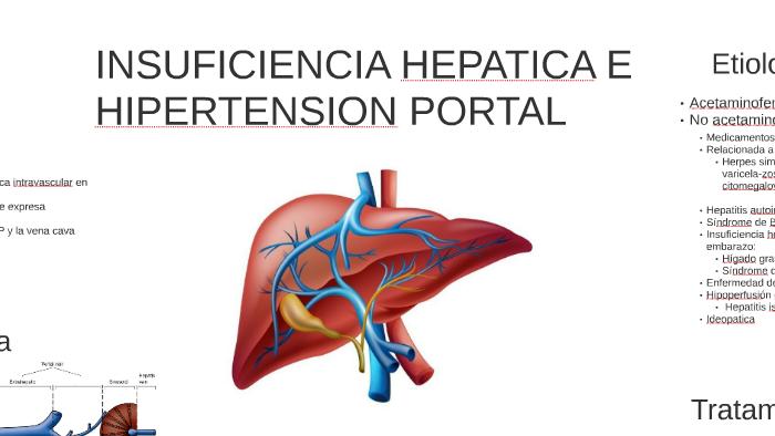 Hipertensión portal colateral