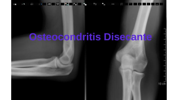 Osteocondritis Disecante by jonathan jonathan on Prezi