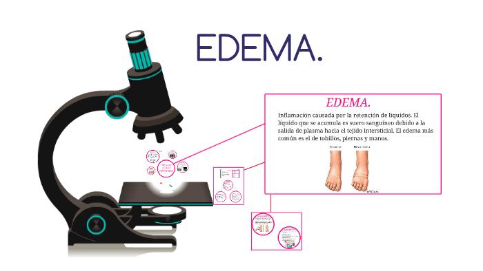 el plasma puede causar edema