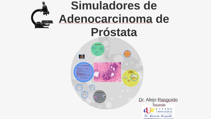 prostata adenomatosa grado 3 de
