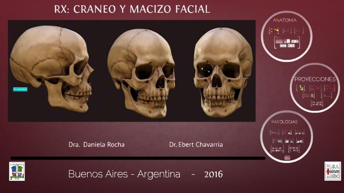Fractura frontal del hueso del cráneo