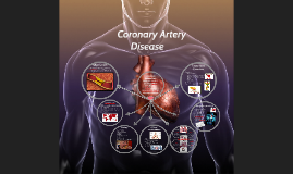 Copy of Coronary Artery Disease