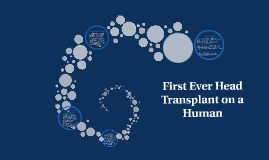 First Ever Head Transplant on a Human Being Planned