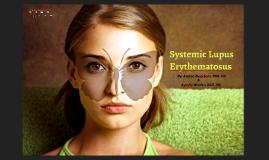 Systemic Lupus Erthematosus  2