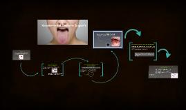Xerostomia y el Sindrome Sjogren's