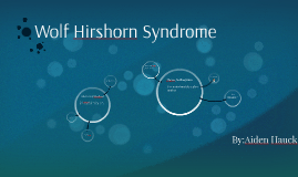 Wolf Hirshorn Syndrome