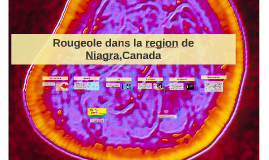 Rougeole dans la region de niagra,Canada