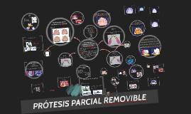 Diseño de Protesis Parcial Removible