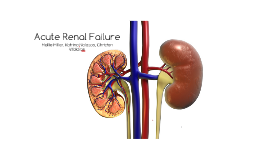 Copy of Acute Renal Failure