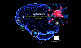Copy of Alzheimers