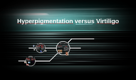 Hyperpigmentation versus Virtiligo