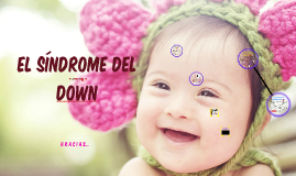 El síndrome del Down