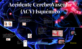 Accidente Cerebro Vascular (ACV) Isquemico