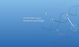 Varicella Zoster Virus: Chicken Pox and Shingles