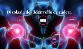 Displasia del desarrollo de cadera