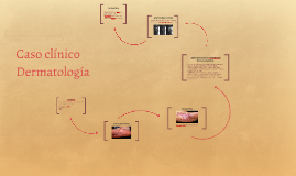 Caso clínico Dermatología