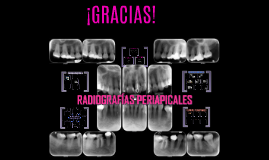 RADIOGRAFIAS PERIAPICALES