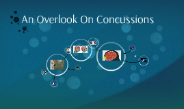 An Overlook On Concussions