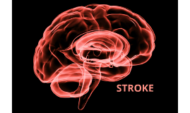 Copy of Cerebrovascular Accident