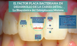 Copy of EL FACTOR PLACA BACTERIANA EN DESARROLLO DE LA CARIES DETAL: