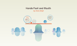 Hands Foot and Mouth
