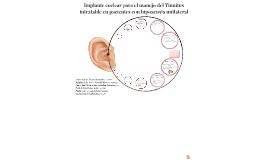 Implante coclear para el manejo del Tinnitus intratable en p